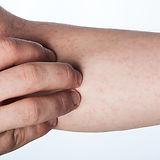 Vasculitis.jpg