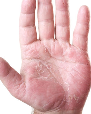 psoriatic-arthritis-symptoms.jpg