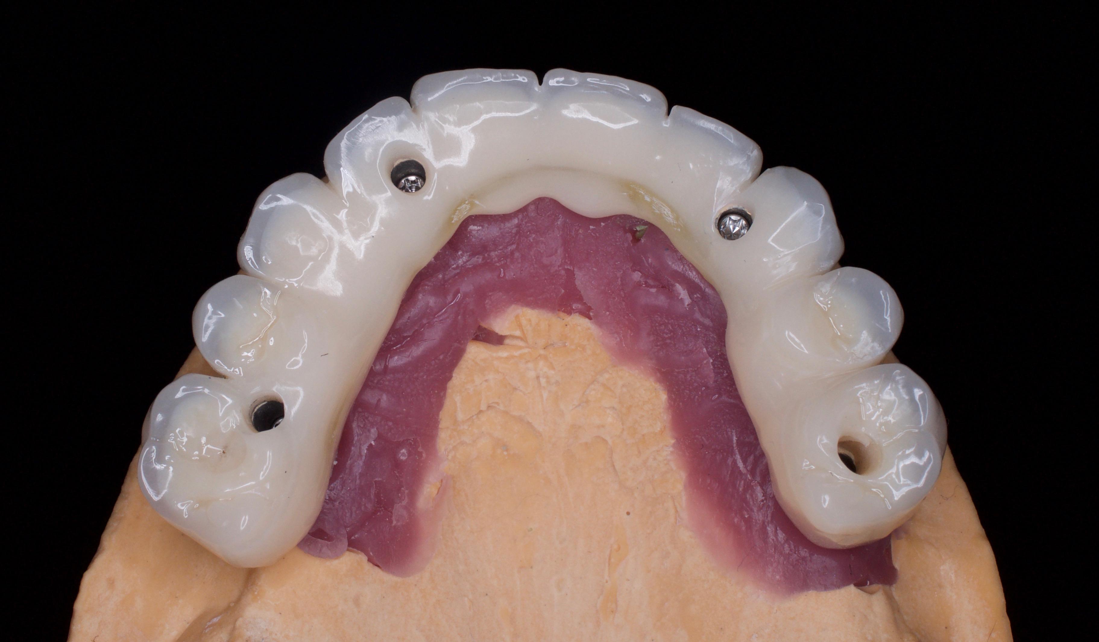 Pagaidu konstrukcija uz implantiem