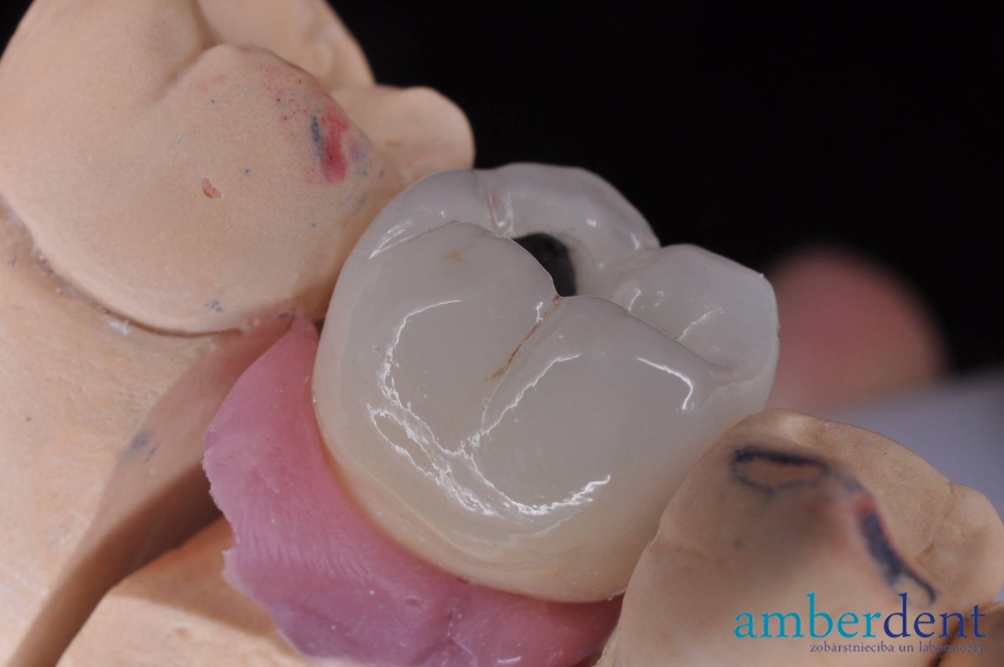 Metālkeramikas kronis uz implanta