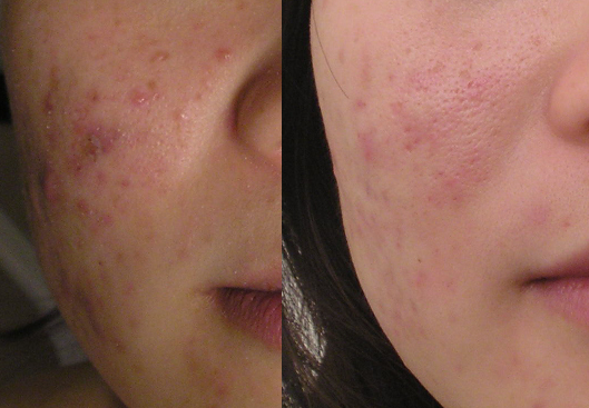 Acne before&After