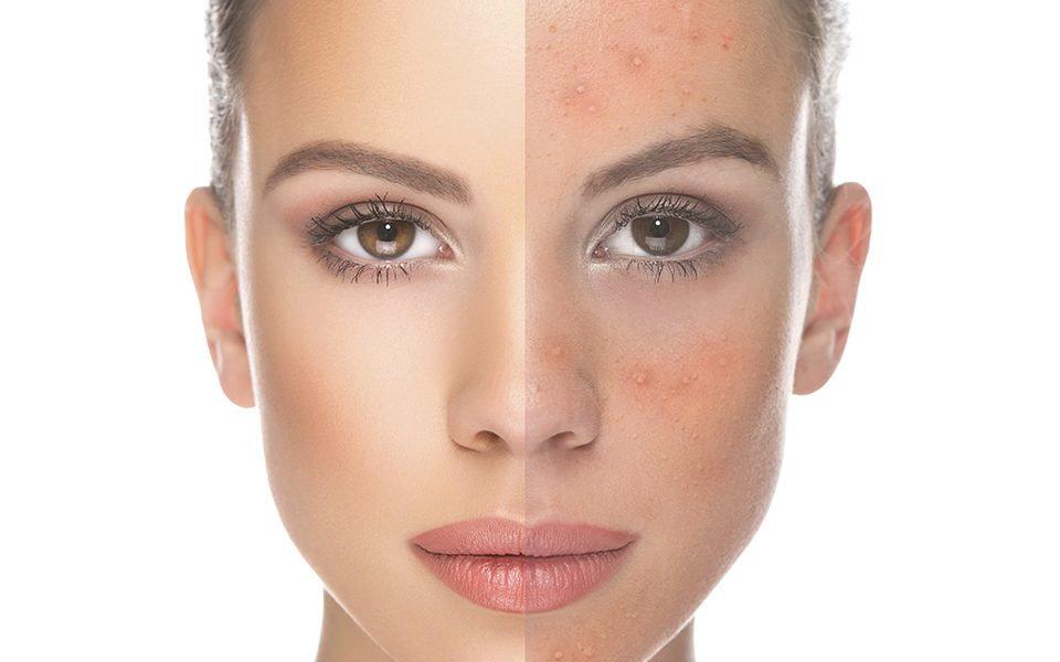 Acne+Acne Mark Treatment