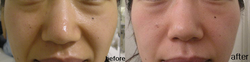 Skin Meridian before&After