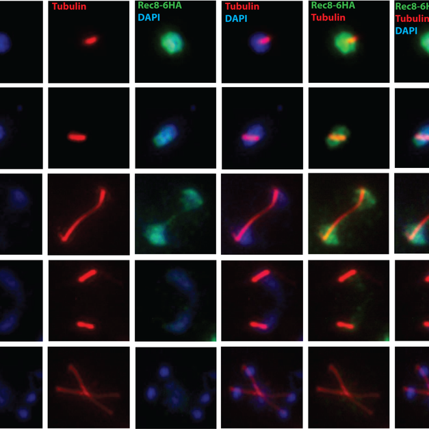 Degradation of cohesin subunit Rec8 in WT and ctf19 mutant