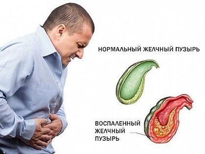Дискинезия желчевыводящих путей - очень разностороннее заболевание, что вызывает массу симптомов: это и головная боль и даже боль в спине при холецистите