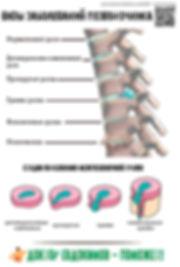 шейный остеохондроз, позвоночник, веребролог ирпень, массаж спины, грыжа диска