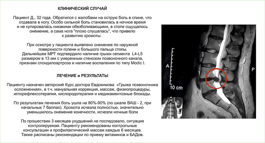 Грыжа позвоночника. лечение грыжи без операции. консультация невролога. боль в спине. протрузия. грыжа шморля