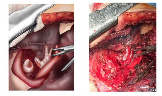 Bronchial Reconstruction