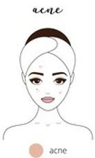 acne skin.jpg