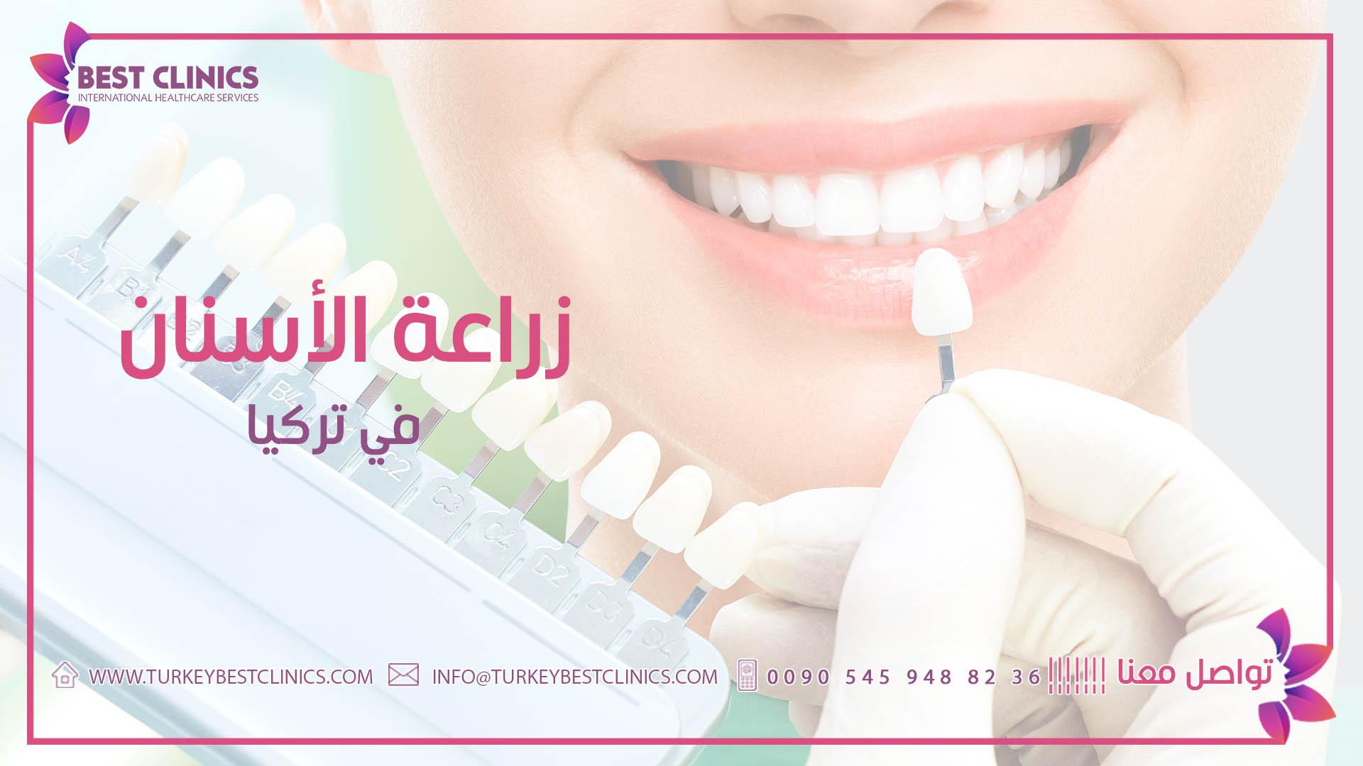 زراعة الأسنان Turkey Best Clinics عيادات الصحة والجمال