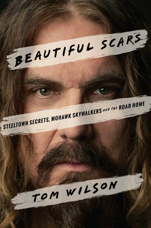 Beautiful Scars cover art