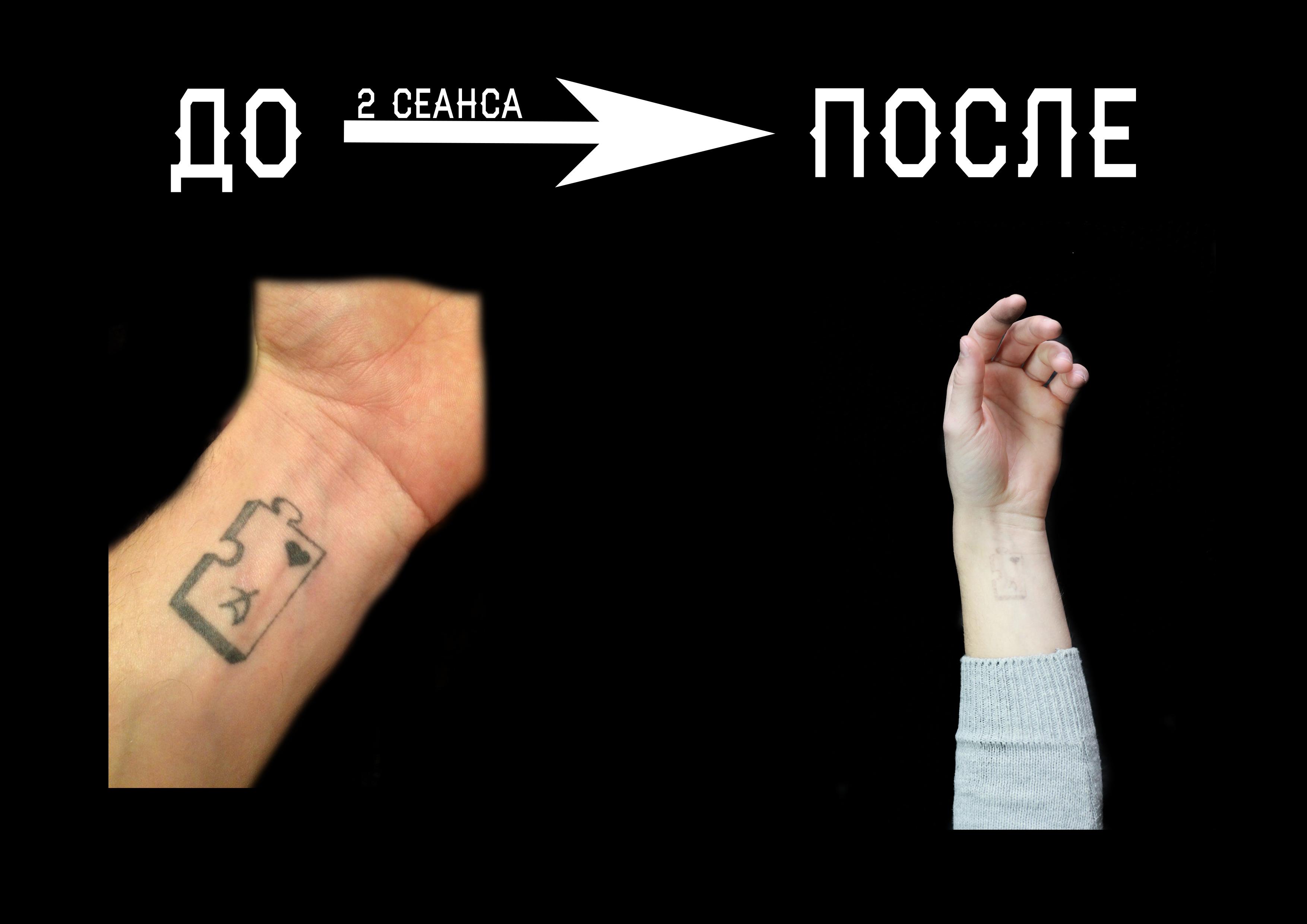 удаление тату Красноярск