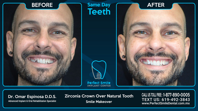 Zirconia Crown Over Natural Tooth