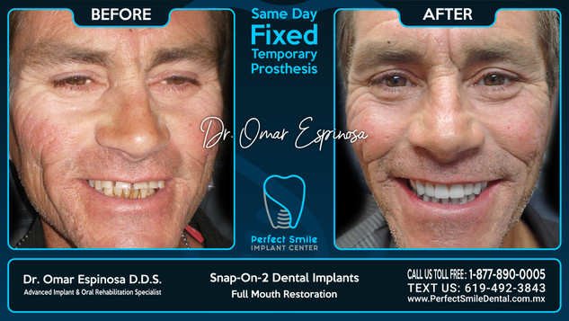 Snap-on-2 Dental Implants