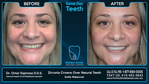 Zirconia Crowns Over Natural Teeth