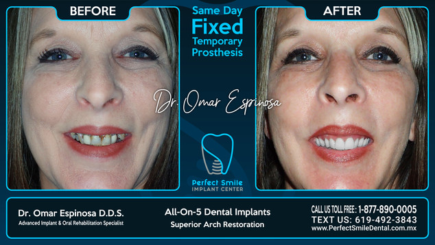 All-on-Five Dental Implants