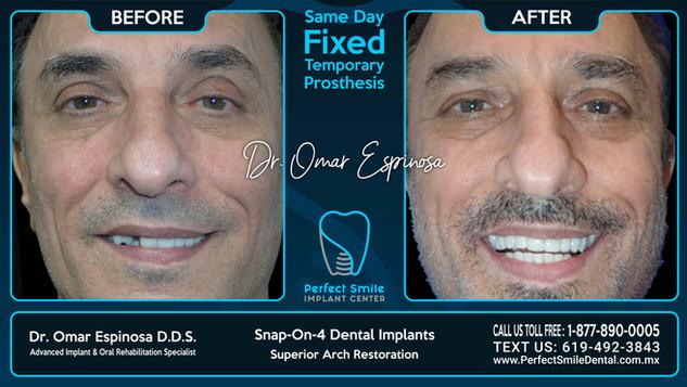 Snap-on-Four Dental Implants