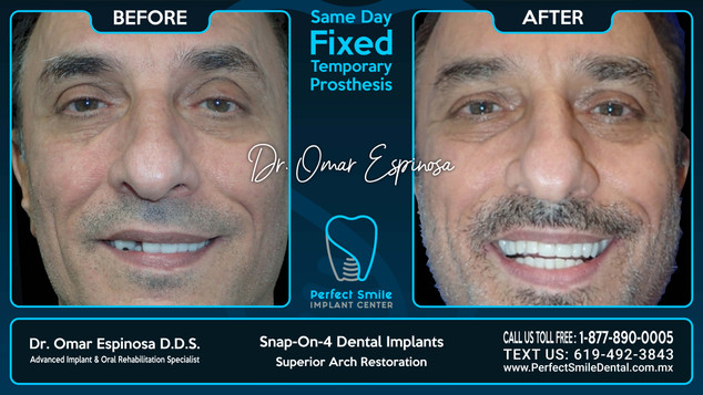Snap-on-4 Dental Implants