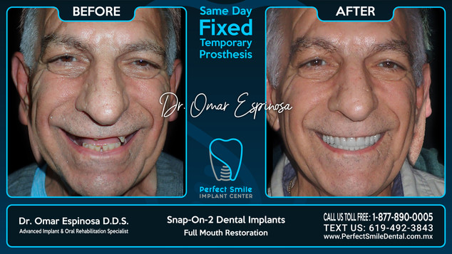 Snap-on-Two Dental Implants