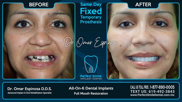 All-on-Six Dental Implants