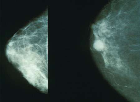 Who needs genetic testing for breast cancer?