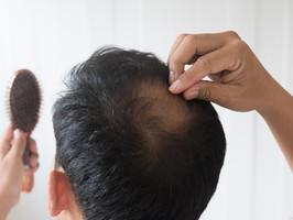 Kamu Mengalami Kebotakan Dini? Begini Cara Menumbuhkan Rambut dengan Cepat!