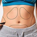Liposuction Square.jpg