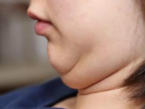5 Cara Menghilangkan Double Chin dengan Cepat dan Mudah