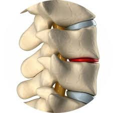 non surgical spinal adjustment