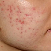 Red-Erythematous-Acne-Scars-on-Cheek-300