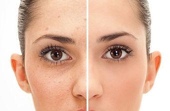 clear-skin-3.jpg