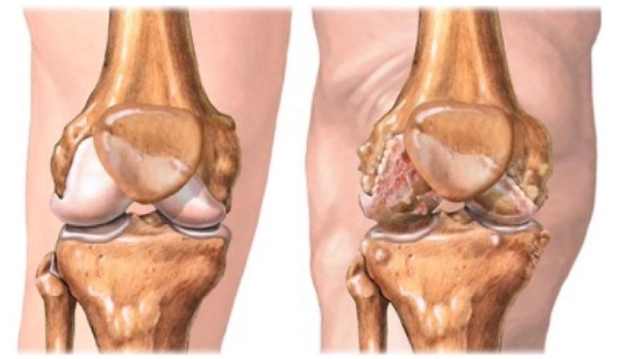 Afectaciones en la rodilla - Zhi acupuntec