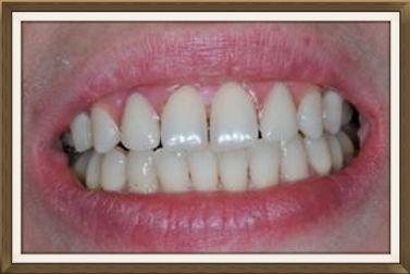 Valplast le più avanzate tecniche di estetica dentale
