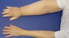 What is Lymphoedema?