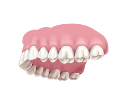 Maxillary%20arch_edited.png