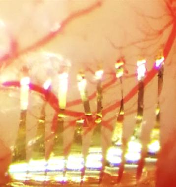 27. Parallel, minimally-invasive implantation of ultra-flexible neural electrode arrays
