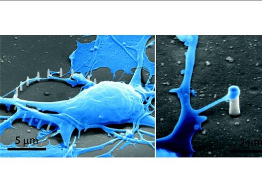07. Noninvasive neuron pinning with nanopillar arrays