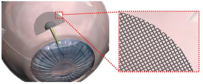 22. A novel flexible microfluidic meshwork to reduce fibrosis in glaucoma surgery