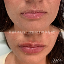 Lip and Laugh Lines Augmentation