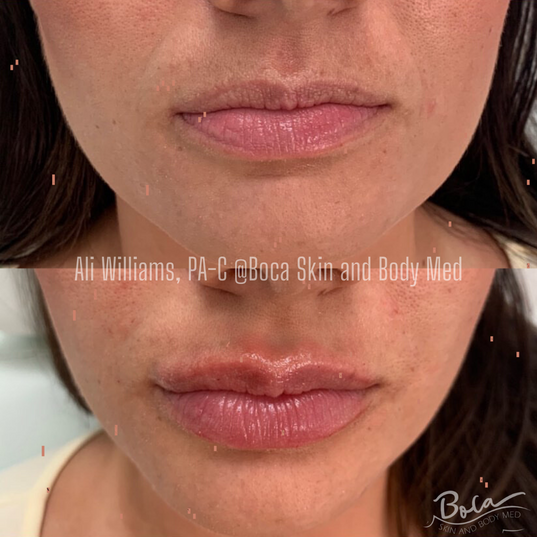 Lip and Laugh Lines Augmentation