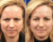 patient-2605-botox-before-after_edited.j