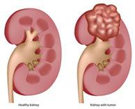 Kidney cancer_3.jpg
