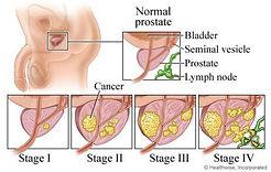 Prostate cancer_4.jpg