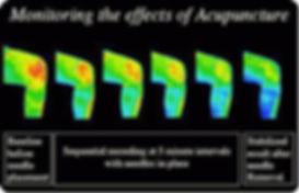 EffectsOfAcupuncture2.jpg