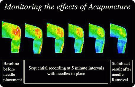 EffectsOfAcupuncture2.jpg