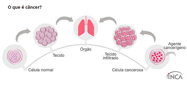 o-que-e-cancer-celulas_1.jpg