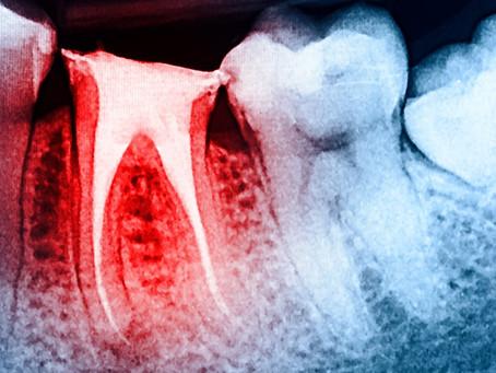 Oral Surgery Q & A