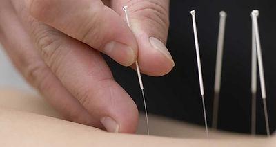 akupunktura_medicinske pijavke