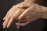 artritis, medicinske pijavke