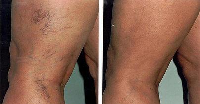 zdravljenje s pijavkami,krčne žile